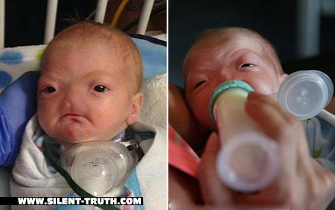 """کودک مبتلا به بیماری """"Congenital Arhinia"""""""
