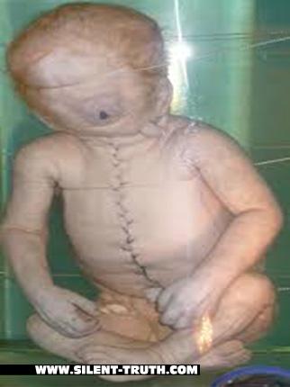 جنین مبتلا به رینوسفالی یا سیکلوپیا