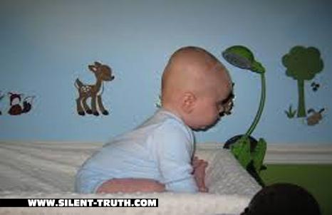 کودک مبتلا به اوکسی سفالی (Oxycephaly)