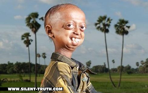 فرد مبتلا به زودپیری (progeria)