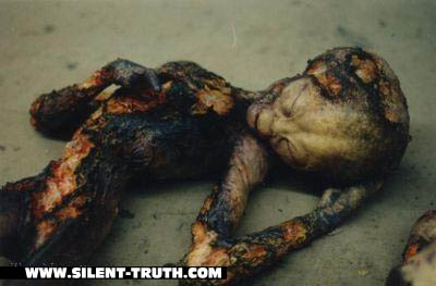 Roswell_Burned_Alien_Image_1