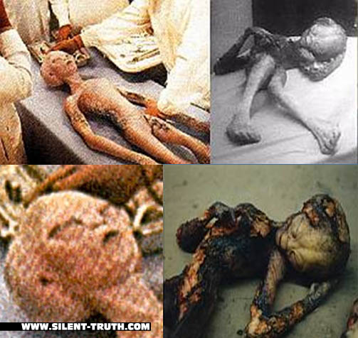 Roswell_Burned_Alien_Image_6